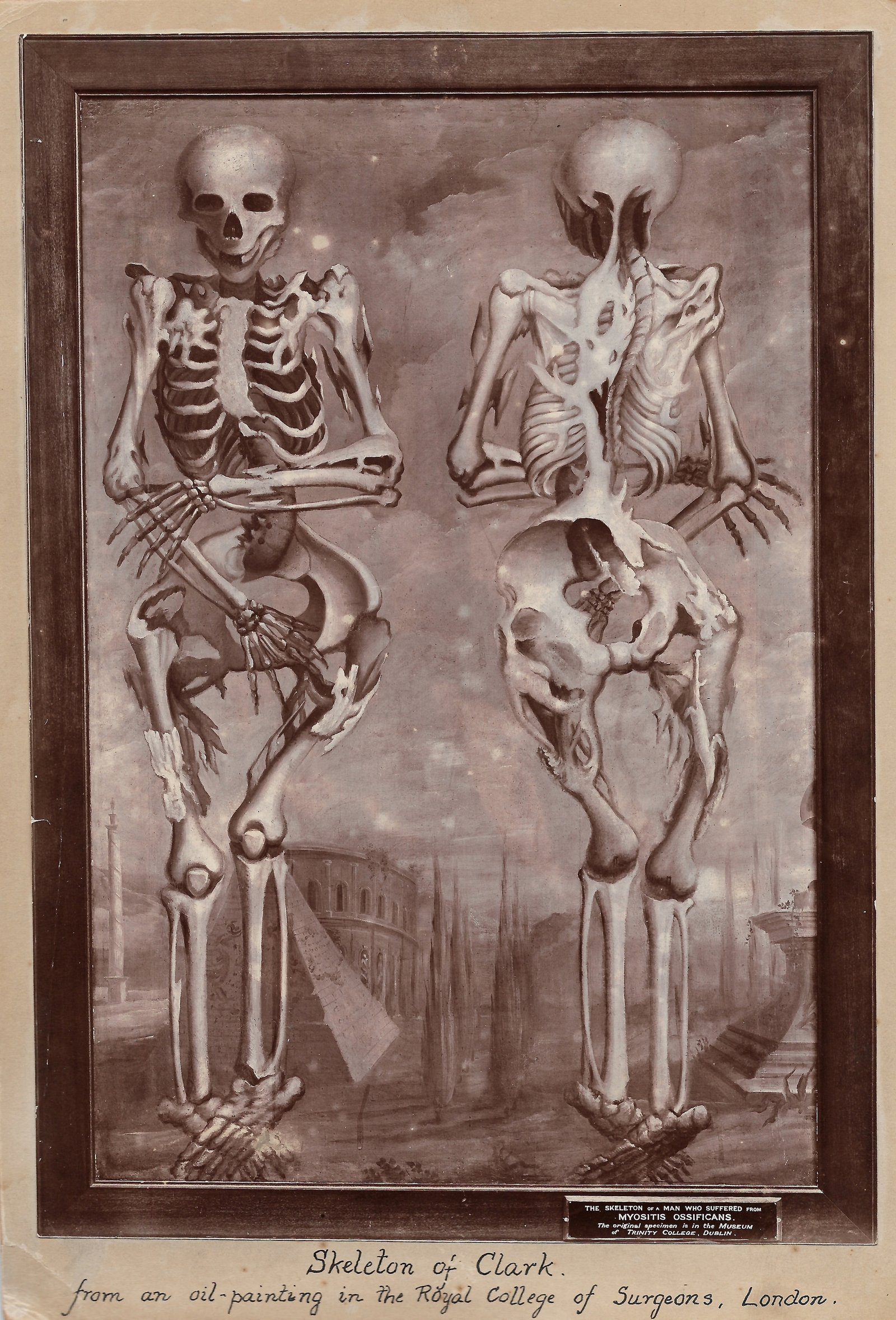 Image - Image of William Clark's skeleton copied from oil painting in the Royal College of Surgeons, London.