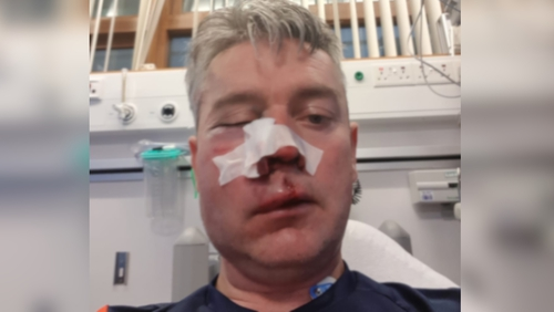 Daniel Sweeney was assaulted following a match in the midlands last weekend