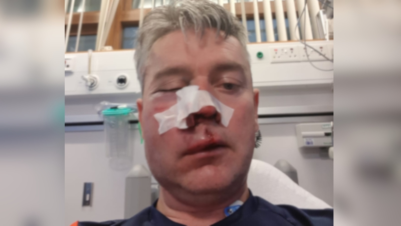 Daniel Sweeney suffered a suspected broken jaw and injuries to his eye and nose