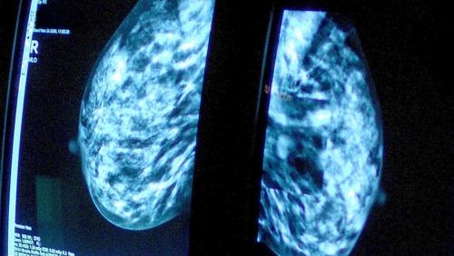 Huge smear test backlog hits 150,000 women in English NHS