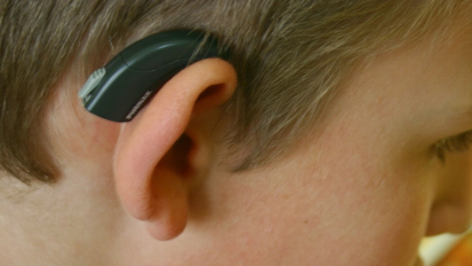 HSE issues further apologies over audiology services