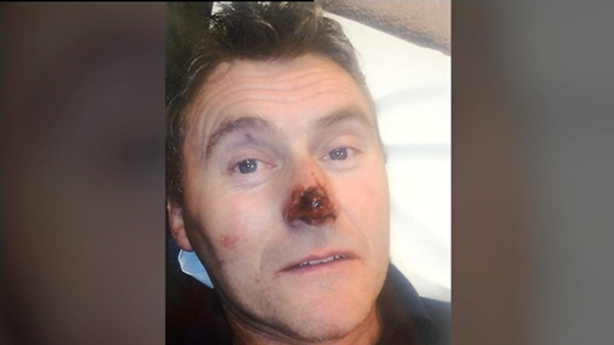 Dessie O'Hare injuries