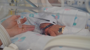 Alex was born 15 weeks' early, weighing the equivalent of just a half a bag of sugar