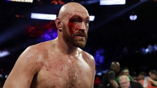 Tyson Fury will make his official WWE debut on 31 October