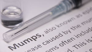 Mumps is a highly contagious viral infection, and the most common symptom of mumps is a swelling of the parotid glands