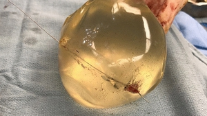 An image shows the bullet trajectory through the implant (Pic: SAGE Medical Journal)
