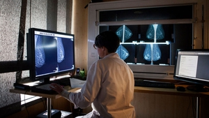 The number of women who had a complete mammogram was 56,270 last year, which is behind target by 128,730