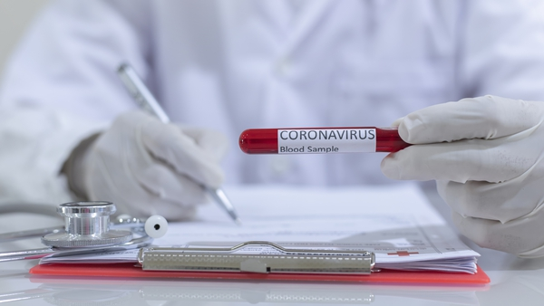 20 more cases of the coronavirus have been diagnosed in the Republic