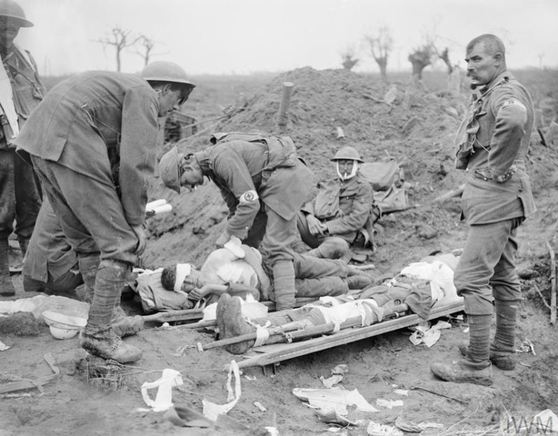 A doctor dresses the wounds of Lieutenant Guy Vaughan Morgan of the 2nd Battalion, Irish Guards at a RAMC aid post during the Battle of Pilckem Ridge, 31 July 1917. Lieutenant Morgan is one of several men on stretchers. Photo: Imperial War Museum