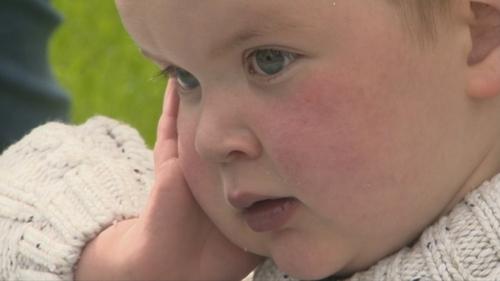 Dáithí was born with hypoplastic left heart syndrome