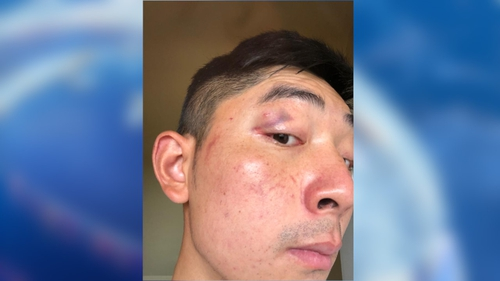 Martin Hong and his friend were treated at Cork University Hospital