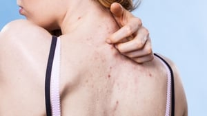 Annoying at best and painful at worst, back acne can be a real issue for some.