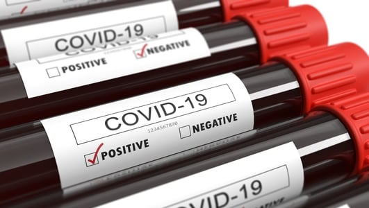 Covid-19: Cases around the world continue to rise