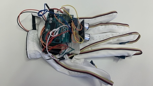 The so-called 'Jedi Glove' was developed by medics and engineers at NUI, Galway