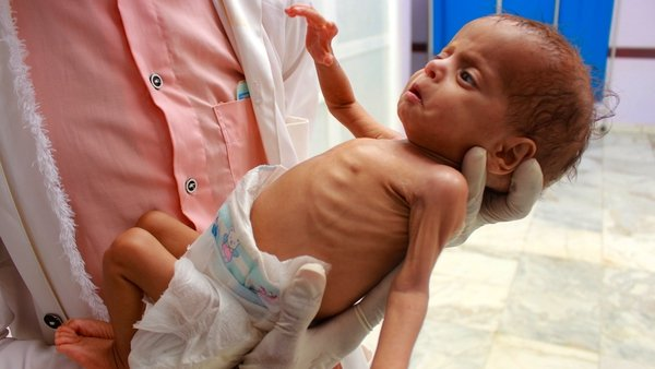A medical care worker holds a Yemeni child who is suffering from malnutrition