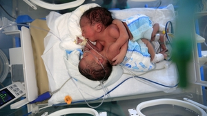 Doctors said the twins have their own heart but they are not sure if any other organs are connected