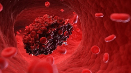 Blood clots can form in the lungs, brain, heart, or veins. Photo SciePro/Shutterstock