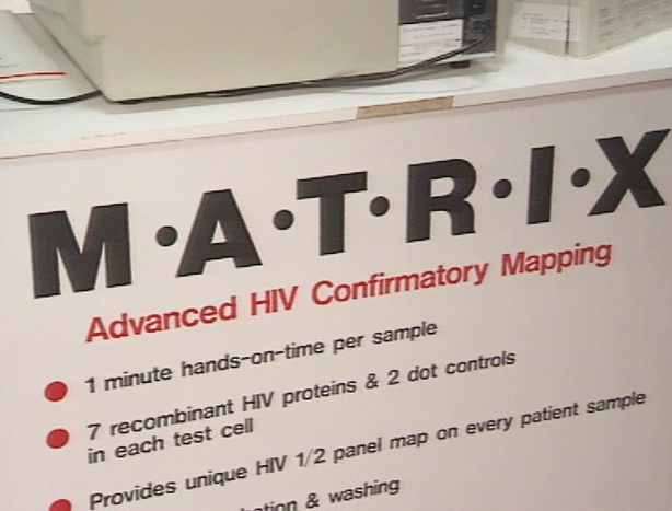 Advanced HIV Confirmatory Mapping Technology (1991)