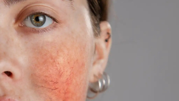 Renee Zellweger, Cameron Diaz and Sam Smith have all been known to suffer with the skin condition, says Liz Connor.