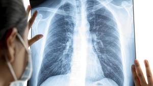 There has been widespread cancellation of radiology services