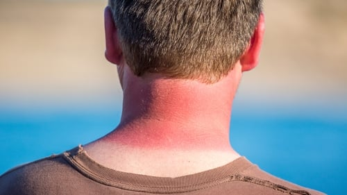 It's been a hot one, meaning there might be a few singed arms and peeling backs around this week.