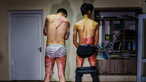 Journalists Nemat Naqdi, 28, (left) and Taqi Daryabi, 22, show their wounds sustained by Taliban fighters