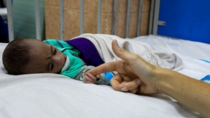 A child lies in a malnutrition treatment ward at the Indira Gandhi Children's Hospital in Kabul (pic: UNICEF)